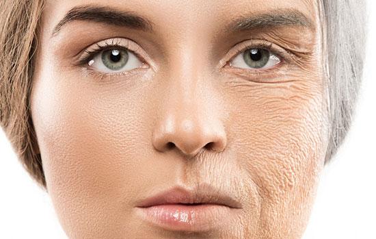 علائم پیری زودرس پوست چیست؟ 1802392 615