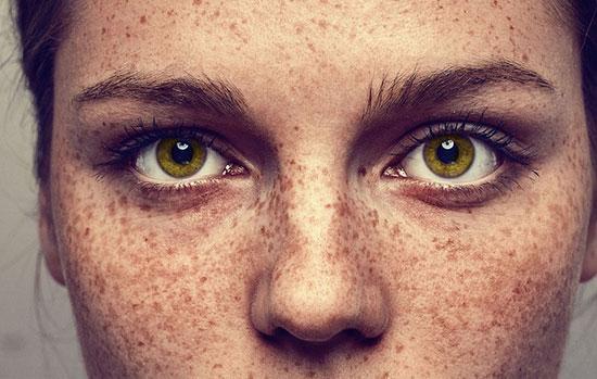 علائم پیری زودرس پوست چیست؟ 1802393 813