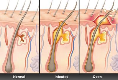 علائم و درمان بیماری کورک boil e10